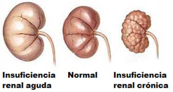 Insuficiencia-renal-cronica